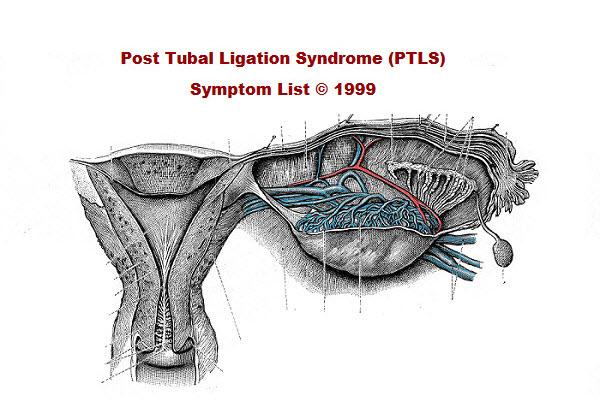 Post Tubal Ligation Syndrome Ptls Symptom List C 1999