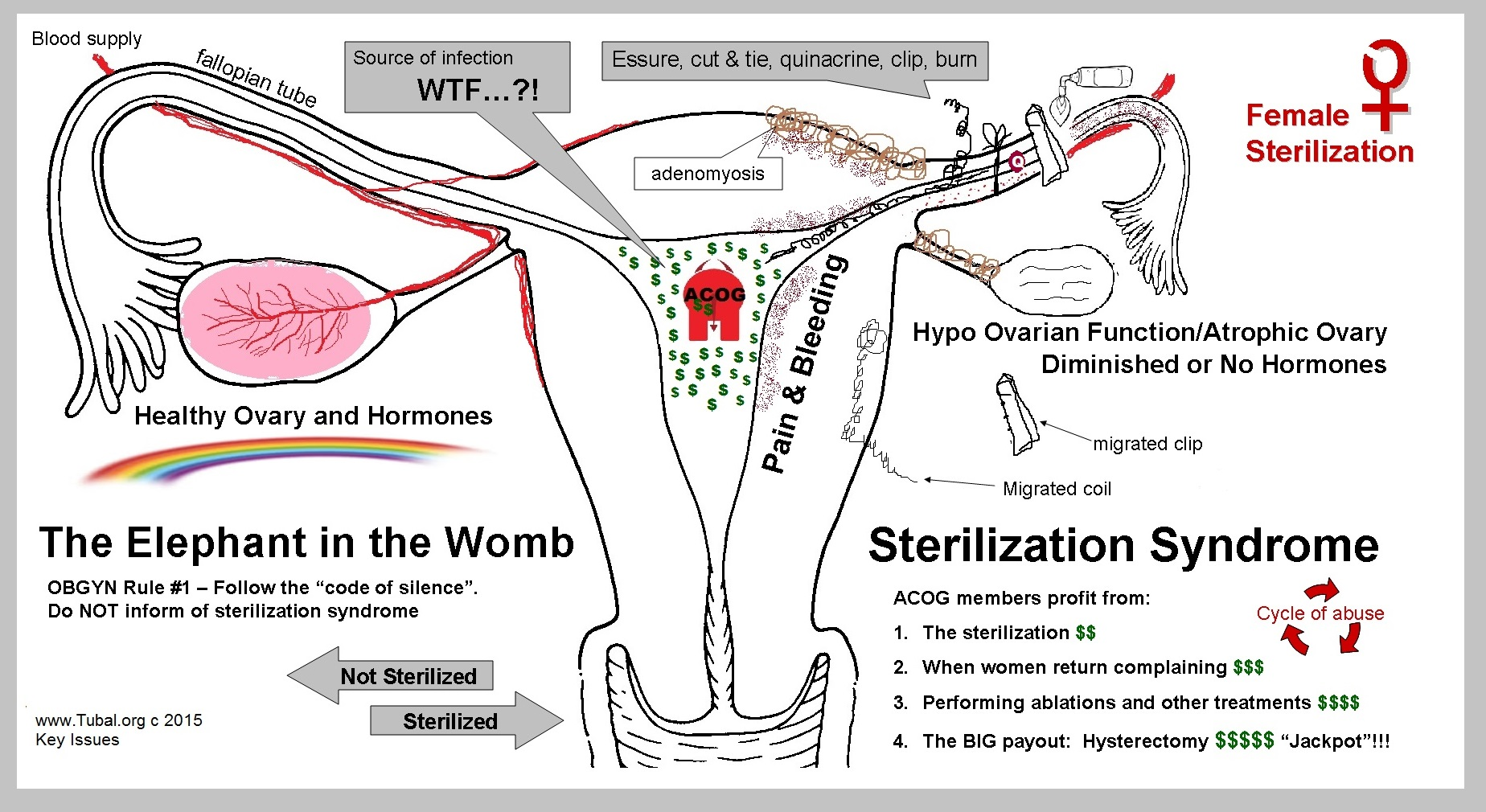 The elephant in the womb - Sterilization Syndrome